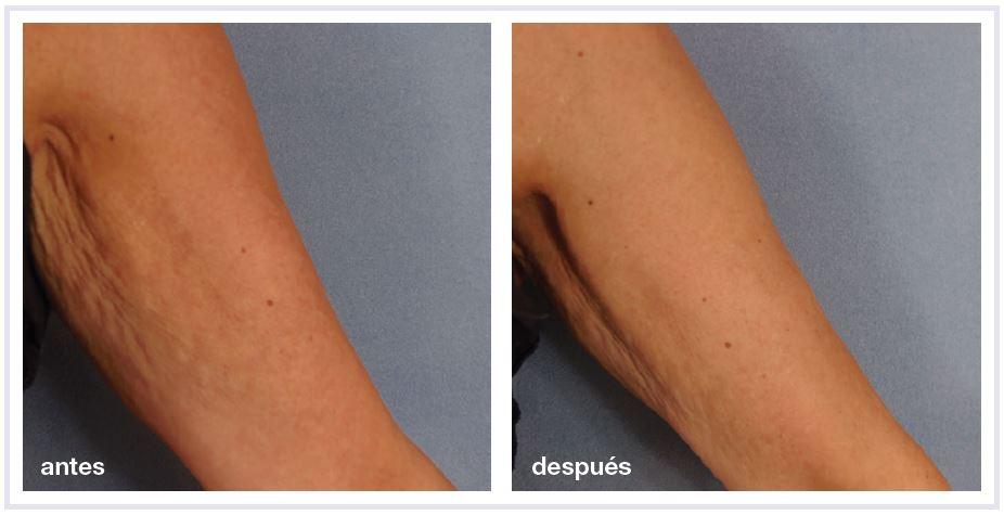 antes y después radiofrecuencia brazos en madrid
