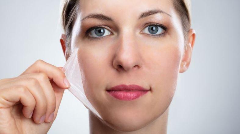 peeling químico facial Madrid